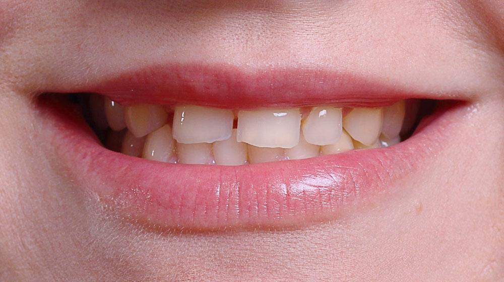 Ортодонтическое лечение #7