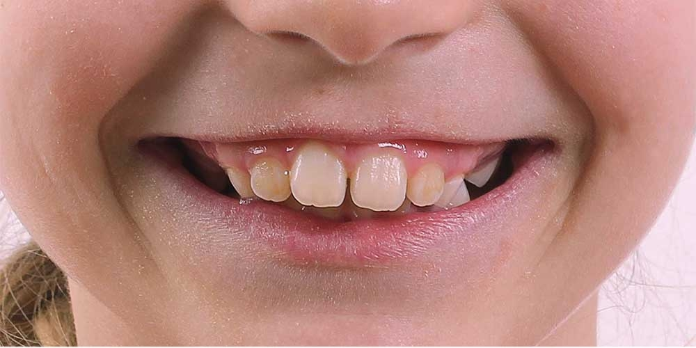 Ортодонтическое лечение #4
