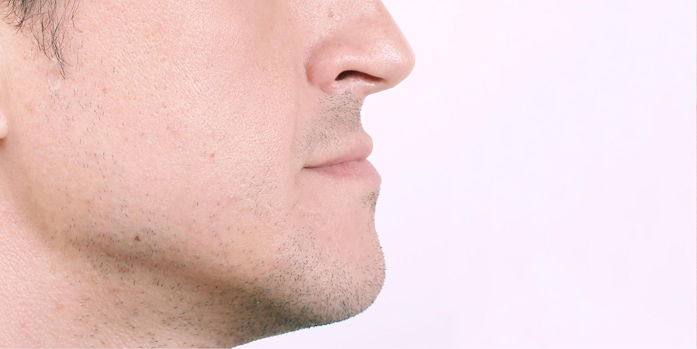 Ортодонтическое лечение #9