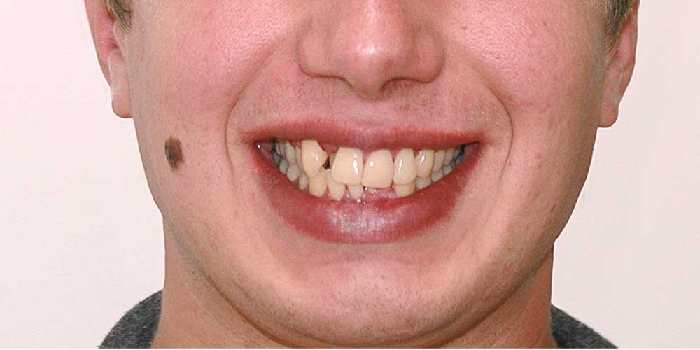 Ортодонтическое лечение #8
