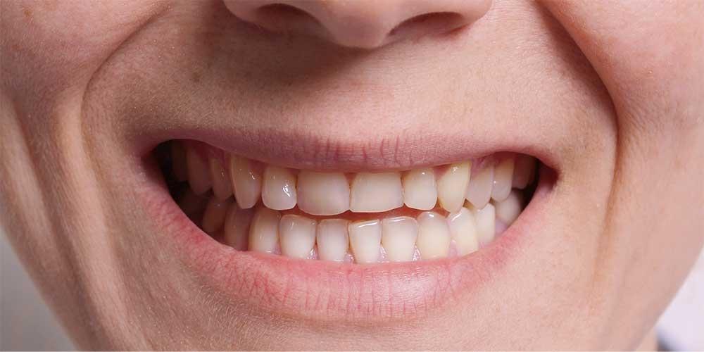 Ортодонтическое лечение #6