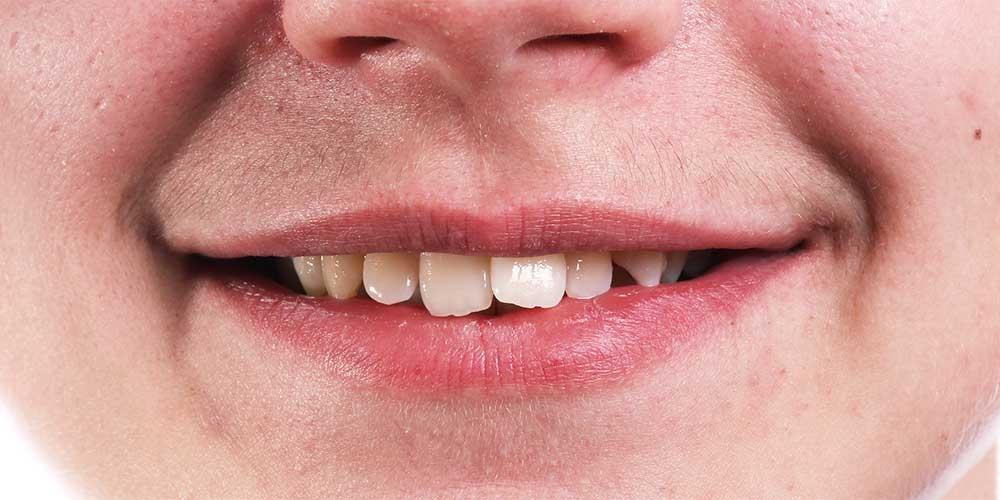 Ортодонтическое лечение #3